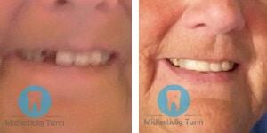 erfaring midlertidig tann