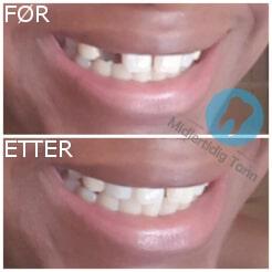 for etter midlertidig tann