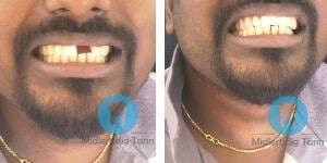 midlertidig tann