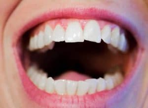 Erstatningstann til din mista tann